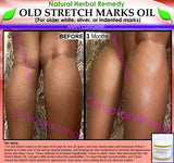 Natural Stretch Mark Remover Oil Herbal Remedy for Older White Silver Indented