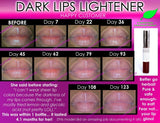 Dark Lips Lightener - Dark Lip Lightening Natural Product Whitening Treatment To Get Pink Lips