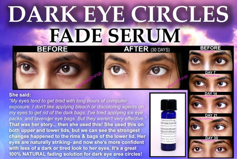 Eye Skin Lightening Serum - Natural Dark Circles Eye Treatment For Lightening Eyelids And Bags Fade Serum With Aloe