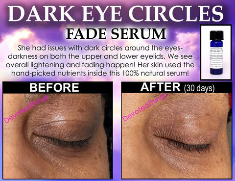 3 Before and After Dark Circles Under Eyes Best Natural ...