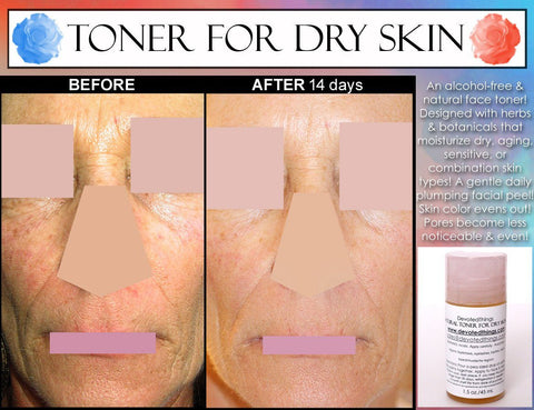 Face Toner For Dry Skin - Natural Alcohol Free Toner For Women With Dry, Sensitive, Combination, Or Aging Skin With Rosewater, Calendula, And Moisturizing Herbal Extracts