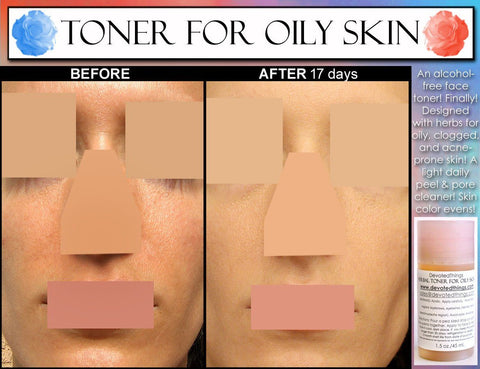 Face Toner For Oily Skin - Alcohol Free Herbal Toner For Oily Skin And Acne With Salicylic Acid, Lemon, And Natural Cleansing Enzymes