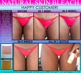Womens Natural Hips Zone Kit for Stretch Marks Lightening Private Areas Cellulite Set of 3 - DevotedThings