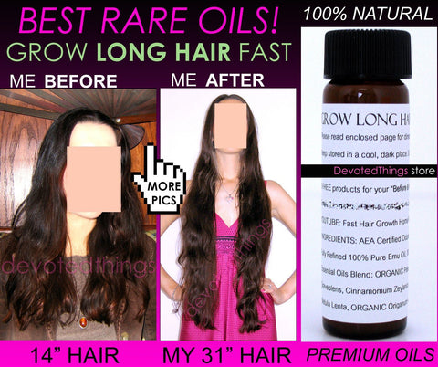 Grow Long Hair Fast Hair Growth Oil Hair Growth Serum Scalp Energizer Rare Oils - DevotedThings