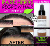 Organic Herbal Hair Loss Treatment, Hair Regrowth Support, and Anti Dandruff Spray - DevotedThings