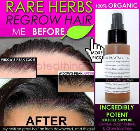 Scalp Spray, Follicle Support Product, Hair Regrowth Product, Stop Hair Loss Product - Organic Herbal Hair Loss Treatment, Hair Regrowth Support, And Anti Dandruff Spray
