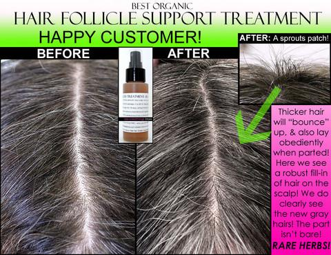 Organic Herbal Hair Loss Treatment Hair Regrowth Support And Anti Dandruff Spray Devotedthings