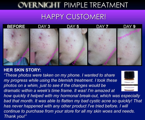 Overnight Pimple Treatment for Zits, Boils, Cysts Fast Remedy - DevotedThings