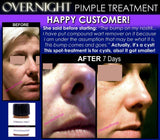 Spot-treatment, Acne Treatment, Boils Treatment, Cysts Treatment - Overnight Pimple Treatment For Zits, Boils, Cysts Fast Remedy