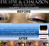 BEST Eye Stye Treatment and Chalazion Treatment 2 IN 1 Product Oil-Free - DevotedThings