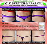 Natural Stretch Mark Remover Oil Herbal Remedy for Older White Silver Indented - DevotedThings