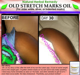 Stretch Mark Oil - Natural Stretch Mark Remover Oil Herbal Remedy For Older White Silver Indented