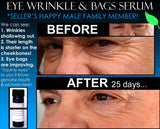Natural Eye Wrinkle Treatment & Eye Bags Treatment 2 IN 1 Product - DevotedThings