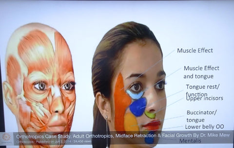 Exercises for face, head, neck muscles. FACEXER. – FacExer