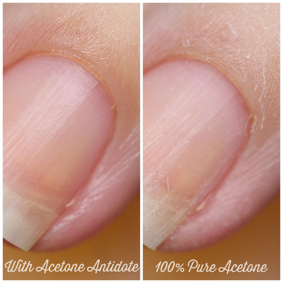 Nail Care - Acetone Antidote - Acetone Additive To Protect Nails & Cuticles