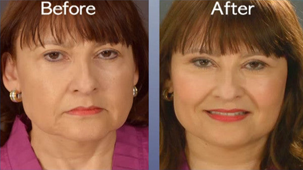 alt Art Harding's Instant Face and Neck Lift