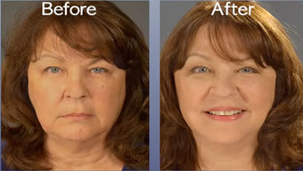 Art Harding's Instant Face and Neck Lift | Art Harding