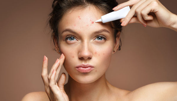 HI-TIPS: What Is Your Acne Telling You?