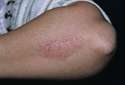 Don't self treat PSORIASIS. DON'T.