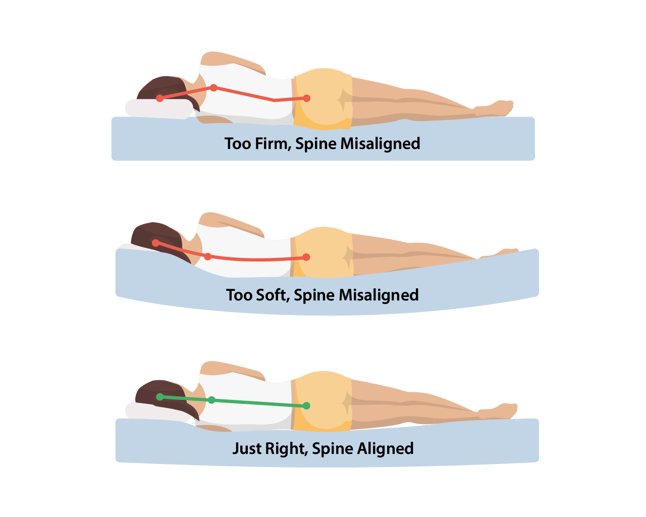Diagram comparing spinal alignment and misalignment