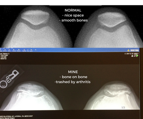normal_knee_xray_vs_bone_on_bone_patellas