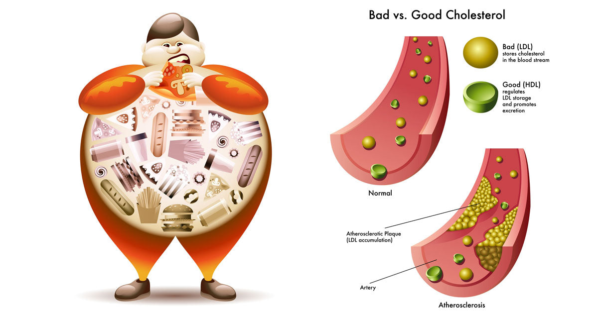 Image result for cholesterol harmful effects