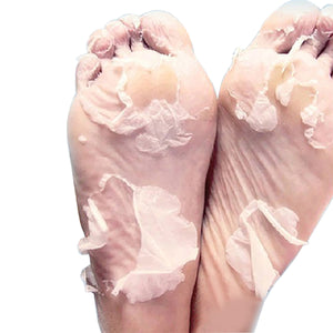 Sheeky Foot™ Exfoliating Foot Peel and Callus Remover