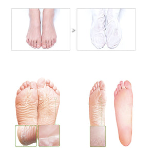 Black Friday Event Sheeky Foot Peel and Callus Remover