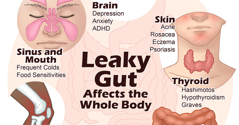 Leaky Gut vs Bone Broth