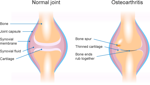 The Osteoarthritis Epidemic