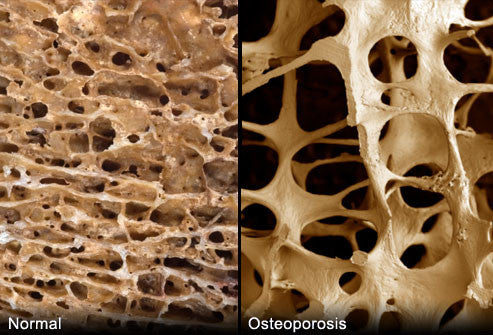 Anti-inflammatory diet reduces bone loss, hip fracture risk in women