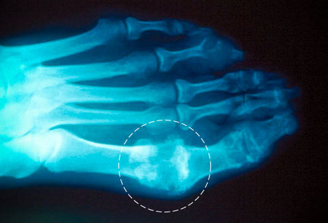 gout symptoms top of foot pain juice recipe to lower uric acid natural remedies for severe gout