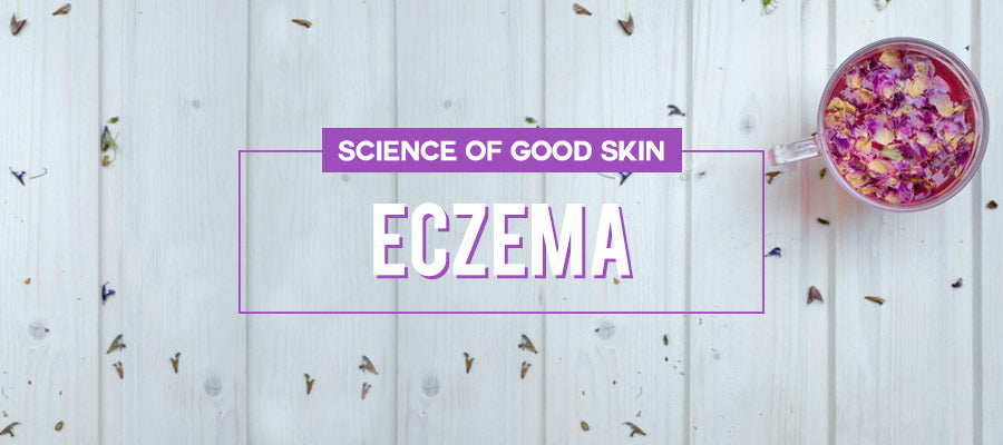Eczema | Science of Good Skin
