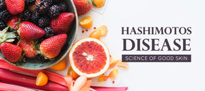 Hashimoto's Disease | Science of Good Skin