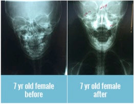 7-yr-old-before-after