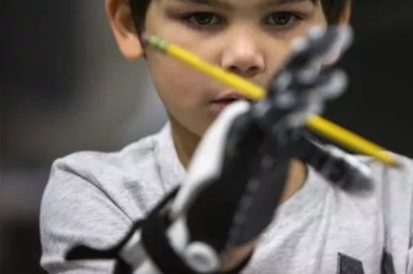 The Helping Hand Project: Prosthetic Devices