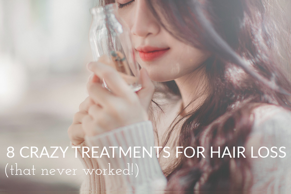 crazy-treatments-for-hair-loss