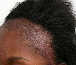 What Is Traction Alopecia And What To Do About It
