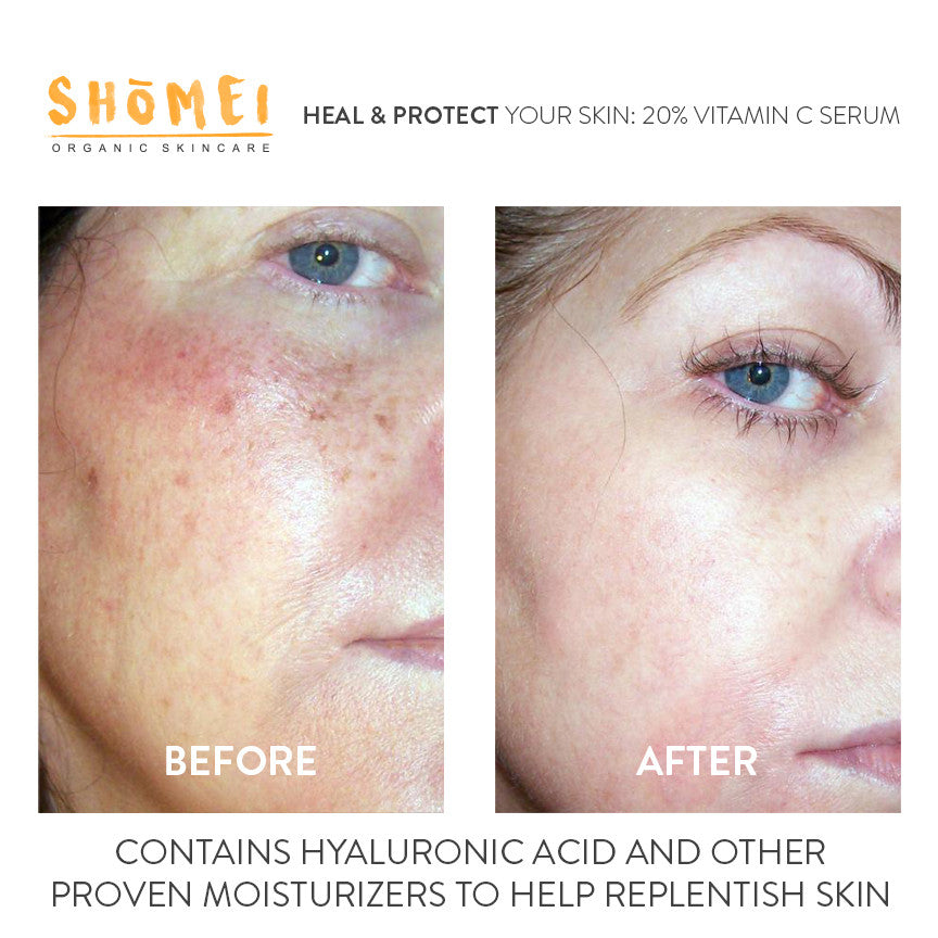 Advanced 20% Vitamin C + E + Ferulic Acid + Hyaluronic
