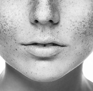 Acne and Blemishes