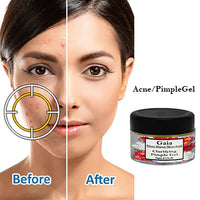 Clarifying Pimple Gel