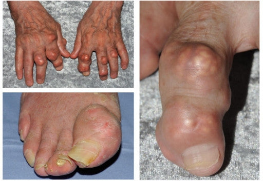 What is Gout and how do I treat it?