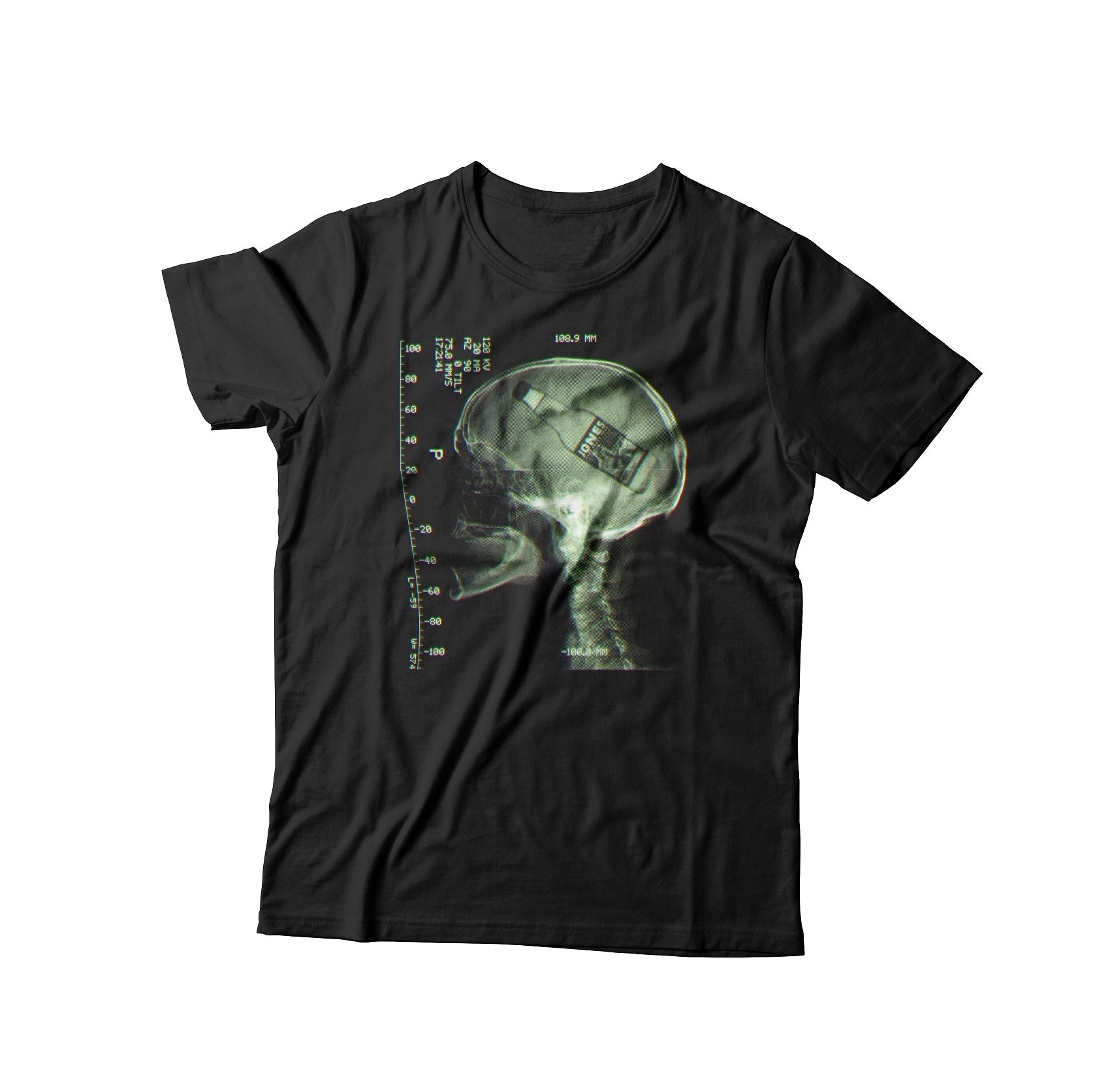 limited edition x-ray TEE