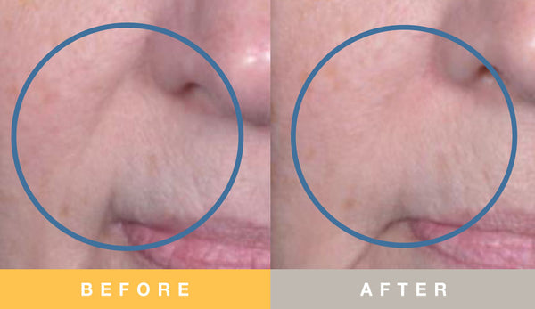 Biopelle Tensage Stem Cell Before & After 12 Week Nasolabial Fold Results