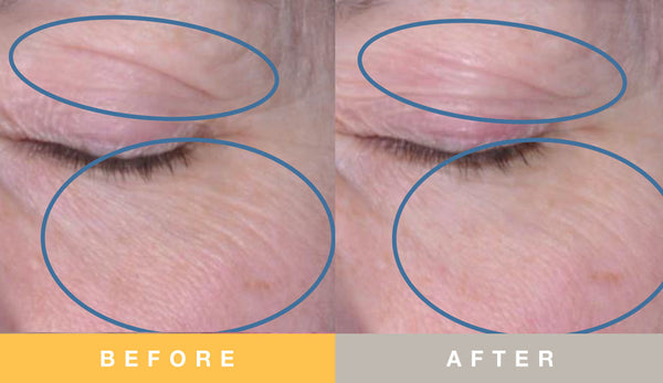 Biopelle Tensage Stem Cell Before & After 12 Week Periorbital Area Results