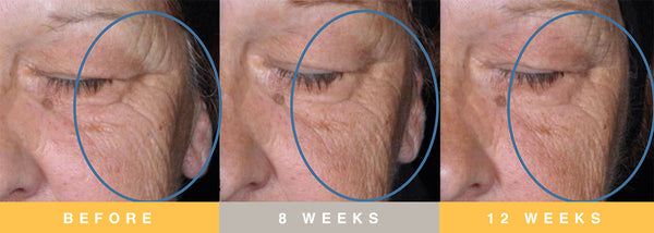 Biopelle Tensage Stem Cell Before & After 3 Month Progression Periorbital Area & Cheek Results