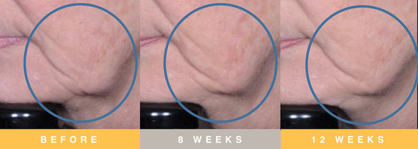 Biopelle Tensage Stem Cell Before & After 3 Month Progression Lower Cheek & Jowl Area