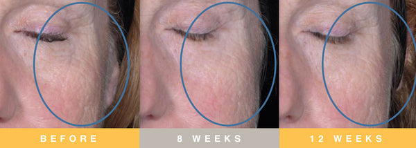 Biopelle Tensage Stem Cell Before & After 3 Months Periorbital Area / Cheek Results