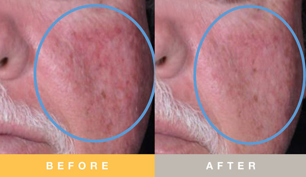 Biopelle Tensage Stem Cell Before & After 8 Week Cheek Results