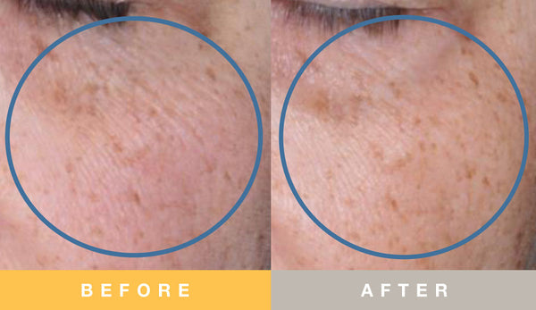 Biopelle Tensage Stem Cell Before & After 8 Week Undereye Area Results